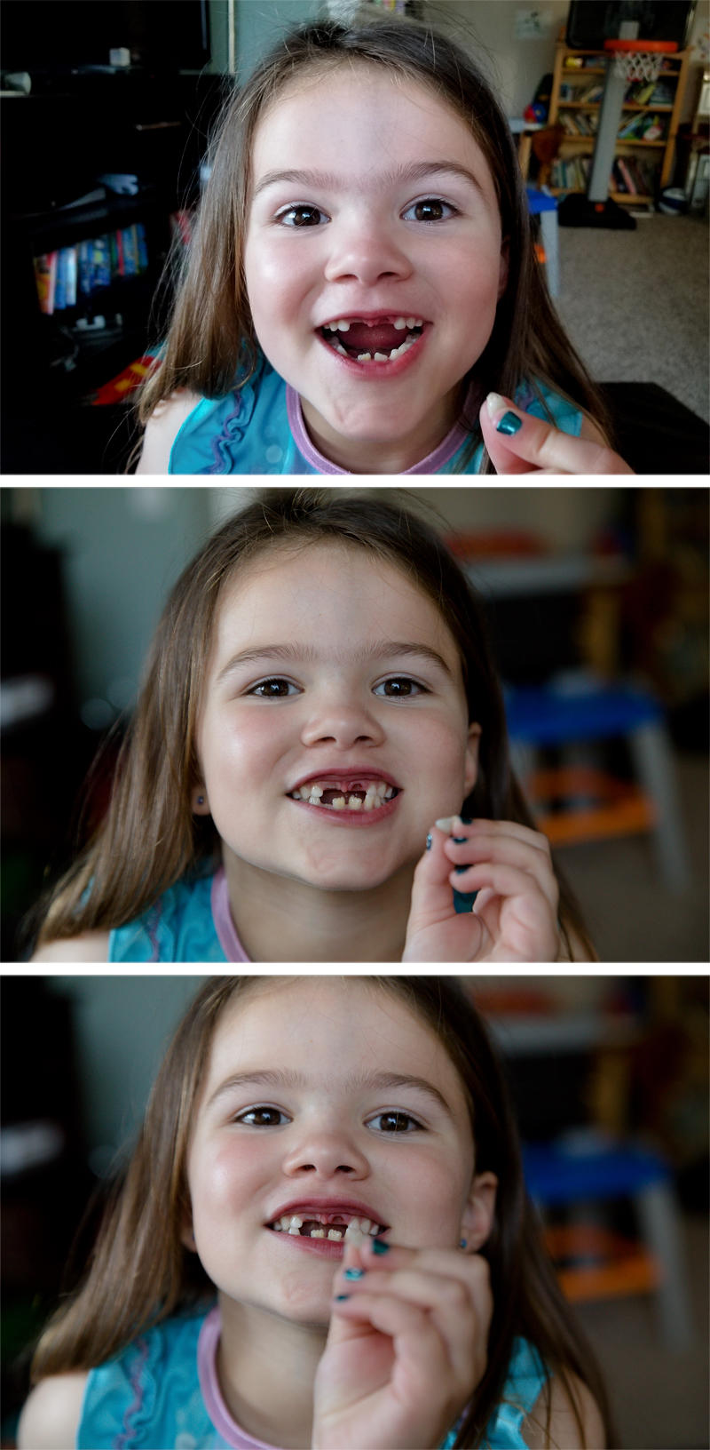 Missing Two Front Teeth